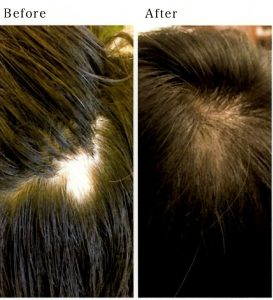円形脱毛症の発毛