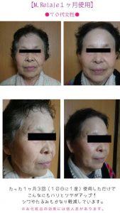 70歳代女性